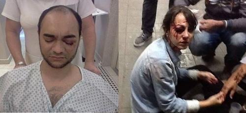 Sergio Silva e Giuliana Vallone feridos por balas de borracha